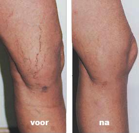 laserbehandeling spataderen